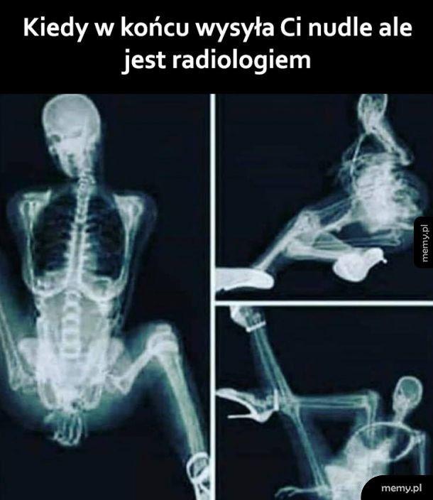 Niegrzeczna radiolożka