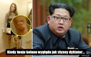 Kolano jak Kim